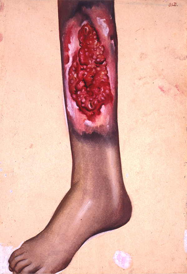Watercolour of large tropical ulcer on lower leg of male patient.